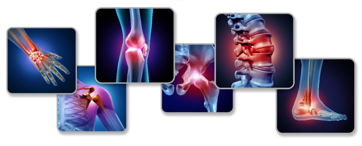 Copper CBD joint pain
